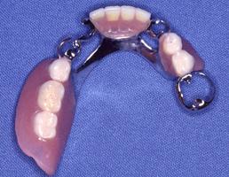 部分入れ歯1