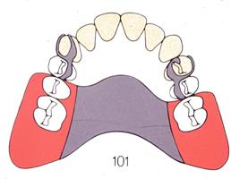 部分入れ歯3