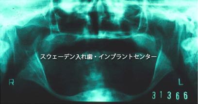 総入れ歯11