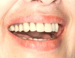総入れ歯1