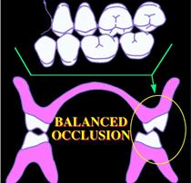 総入れ歯 噛み合わせの再構築