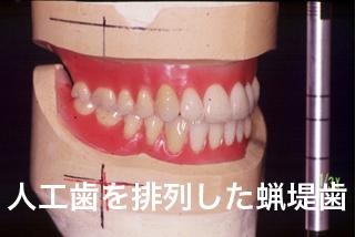 咬合床(蝋堤)に人工歯を排列