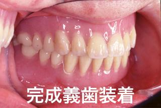 咬合床(蝋義歯)を口腔内に試適