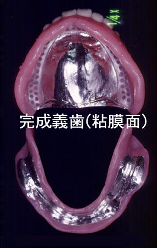 完成義歯(咬合面)