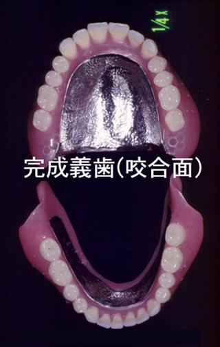 完成義歯(粘膜面)